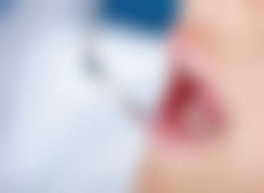First signs of Gum Disease
